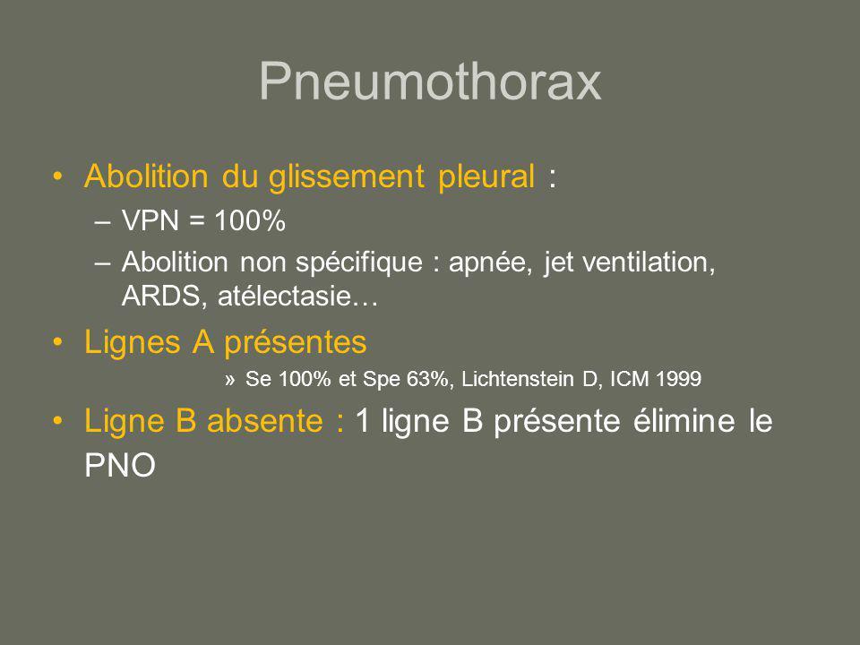 Pneumothorax Abolition du glissement pleural : –VPN = 100% –Abolition non spécifique : apnée, jet ventilation, ARDS, atélectasie… Lignes A présentes »