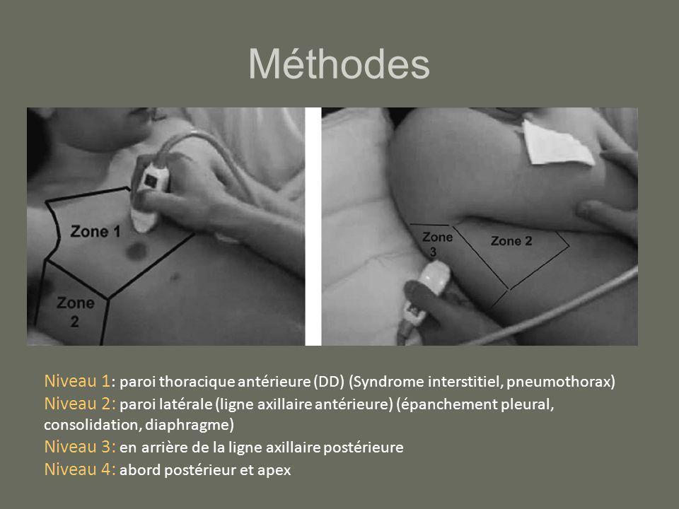 Méthodes Niveau 1 : paroi thoracique antérieure (DD) (Syndrome interstitiel, pneumothorax) Niveau 2: paroi latérale (ligne axillaire antérieure) (épan