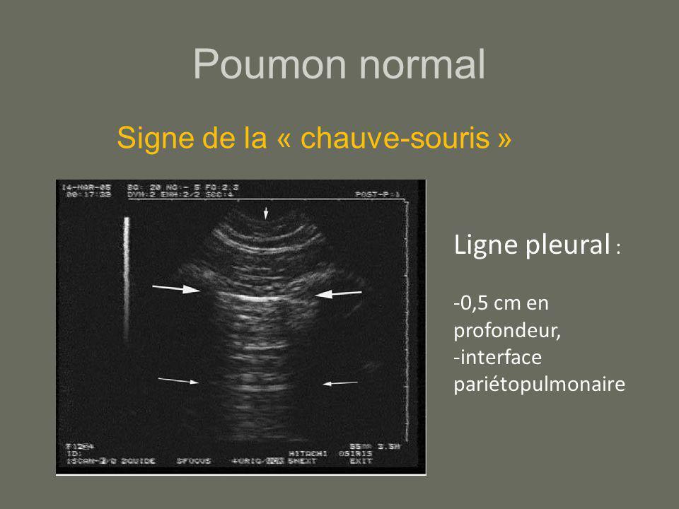 Poumon normal Ligne pleural : -0,5 cm en profondeur, -interface pariétopulmonaire Signe de la « chauve-souris »