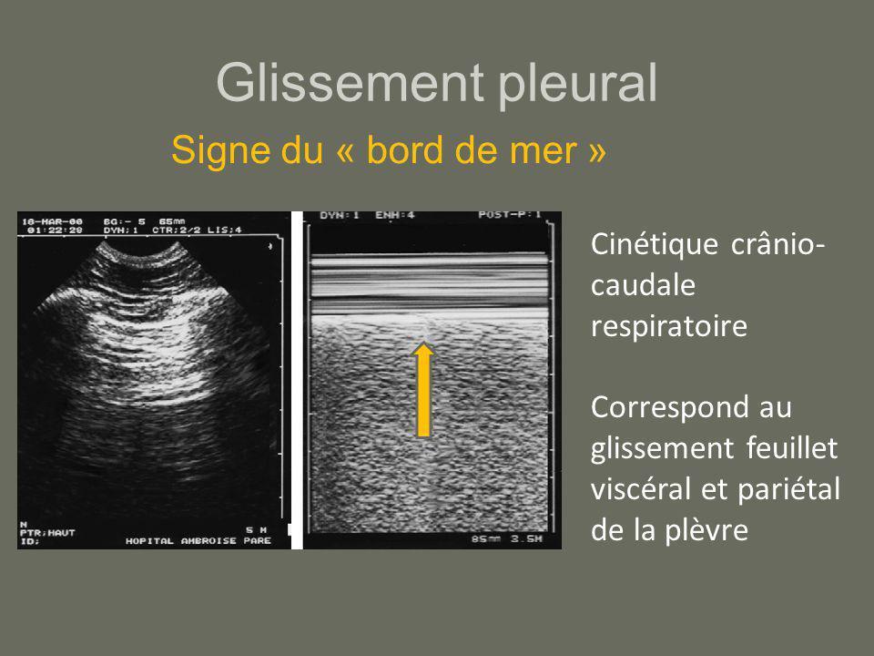 Glissement pleural Cinétique crânio- caudale respiratoire Correspond au glissement feuillet viscéral et pariétal de la plèvre Signe du « bord de mer »