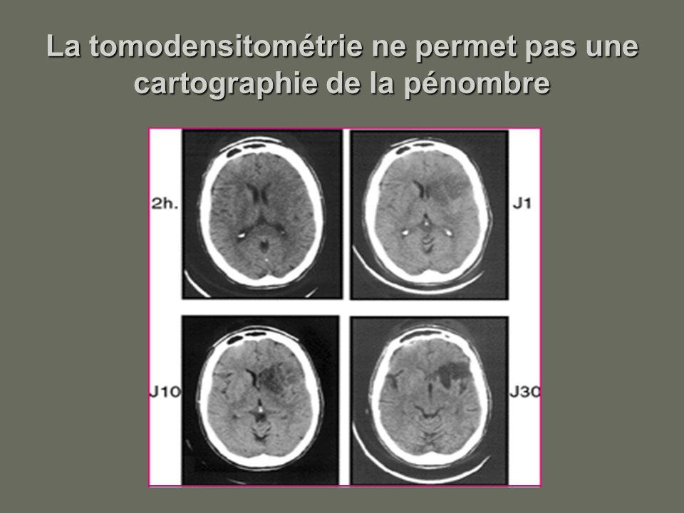La tomodensitométrie ne permet pas une cartographie de la pénombre