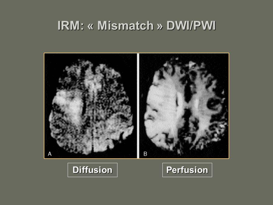 IRM: « Mismatch » DWI/PWI PerfusionDiffusion