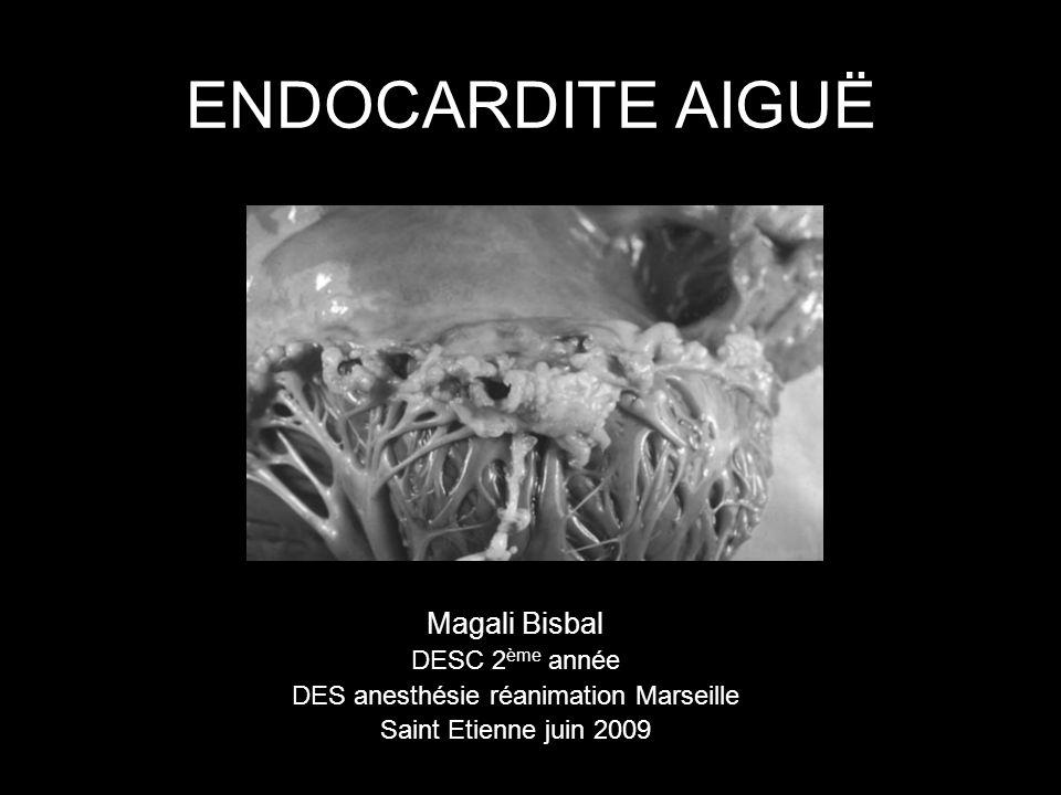 ENDOCARDITE AIGUË Magali Bisbal DESC 2 ème année DES anesthésie réanimation Marseille Saint Etienne juin 2009