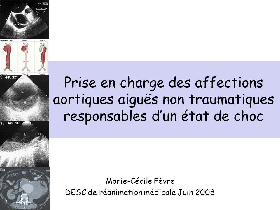 Prise en charge des affections aortiques aiguës non traumatiques responsables dun état de choc Marie-Cécile Fèvre DESC de réanimation médicale Juin 20