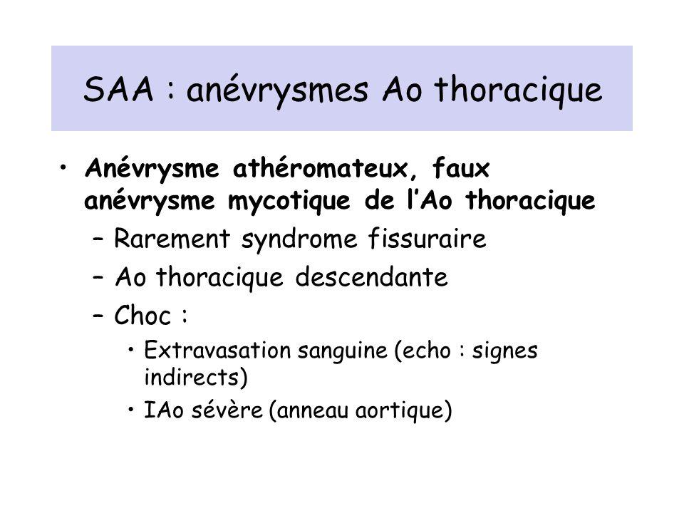 SAA : anévrysmes Ao thoracique Anévrysme athéromateux, faux anévrysme mycotique de lAo thoracique –Rarement syndrome fissuraire –Ao thoracique descend