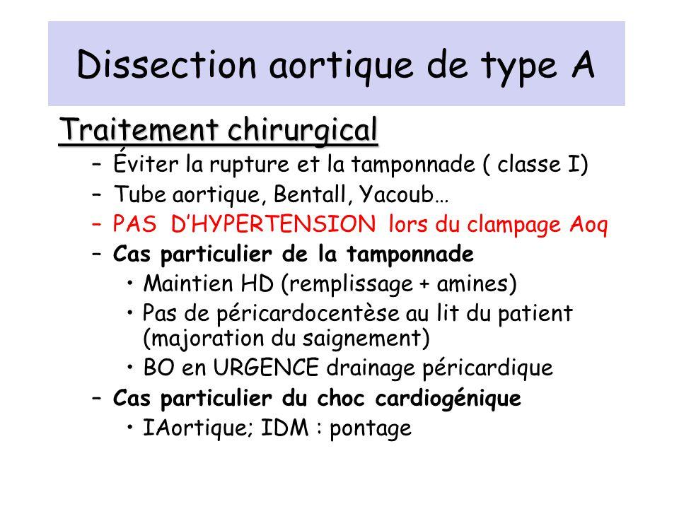 Dissection aortique de type A Traitement chirurgical –Éviter la rupture et la tamponnade ( classe I) –Tube aortique, Bentall, Yacoub… –PAS DHYPERTENSI