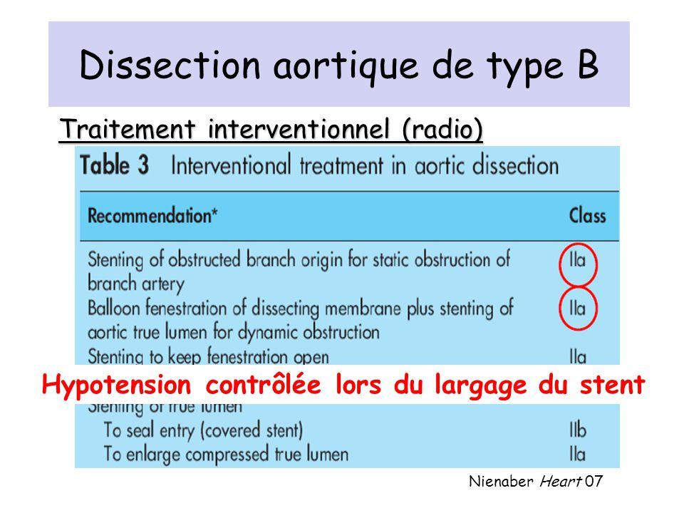 Dissection aortique de type B Traitement interventionnel (radio) Nienaber Heart 07 Hypotension contrôlée lors du largage du stent