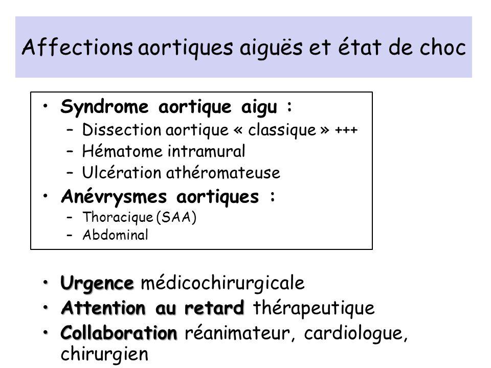 Affections aortiques aiguës et état de choc Syndrome aortique aigu : –Dissection aortique « classique » +++ –Hématome intramural –Ulcération athéromat