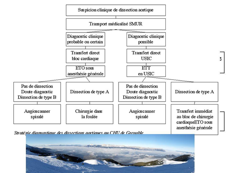SAA + Choc ETT - Lésion Ao ascendante - Absence hémopéricarde - +/- Extravasation - Non contributive Bloc opératoire ETO ( après IOT, sous VM) Type A