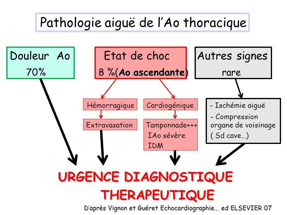 Dissection aortique aiguë Clivage longitudinal de la média à partir –dune brèche de lintima (porte dentrée) OU –dune lésion préexistante (hématome, ulcère athéromateux pénétrant) 1-5 % des étiologies de morts subites 1-2% de mortalité / h de retard au diagnostic par rapport au début des symptômes si dissection Ao ascendante % survie Tps (mois) Cohn LH Hosp Pract 94