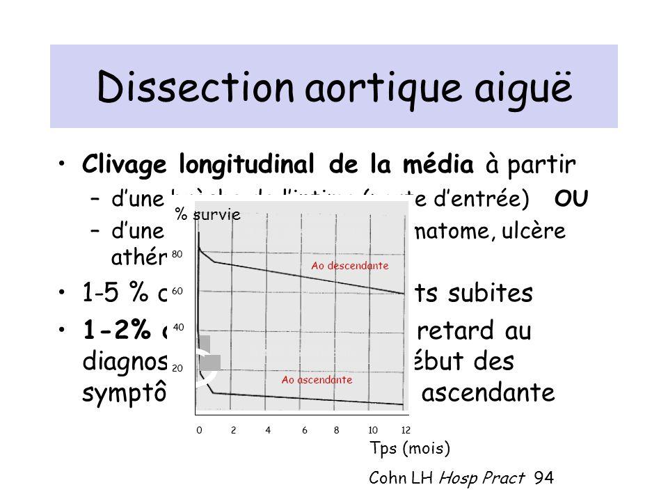 Dissection aortique aiguë Clivage longitudinal de la média à partir –dune brèche de lintima (porte dentrée) OU –dune lésion préexistante (hématome, ul
