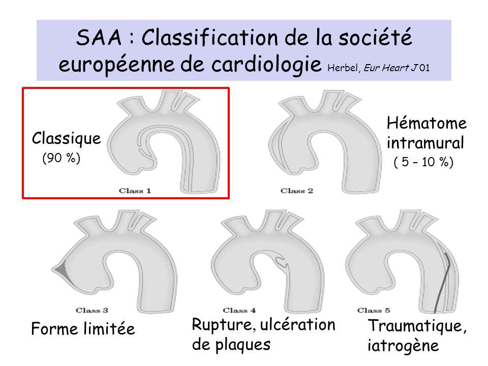 SAA : Classification de la société européenne de cardiologie Herbel, Eur Heart J 01 Classique (90 %) Forme limitée Rupture, ulcération de plaques Trau