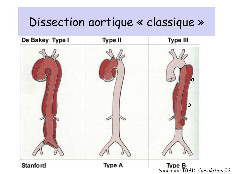 Dissection aortique « classique » Nienaber IRAD Circulation 03 a b