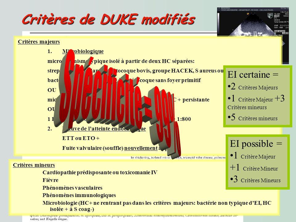 Critères de DUKE modifiés Critères de DUKE modifiés Critères majeurs 1.Microbiologique microorganisme typique isolé à partir de deux HC séparées: streptocoque viridans, streptocoque bovis, groupe HACEK, S aureus ou bactériémie communautaire à Entérocoque sans foyer primitif OU microorganisme compatible avec une EI isolée dHC + persistante OU 1 HC + pour Coxiella burnetii ou IgG phase I titre > 1:800 2.Preuve de latteinte endocardique ETT ou ETO + Fuite valvulaire (souffle) nouvellement apparue Critères mineurs Cardiopathie prédisposante ou toxicomanie IV Fièvre Phénomènes vasculaires Phénomènes immunologiques Microbiologie (HC+ ne rentrant pas dans les critères majeurs: bactérie non typique dEI, HC isolée + à S coag-) EI certaine = 2 Critères Majeurs 1 Critère Majeur +3 Critères mineurs 5 Critères mineurs EI possible = 1 Critère Majeur +1 Critère Mineur 3 Critères Mineurs