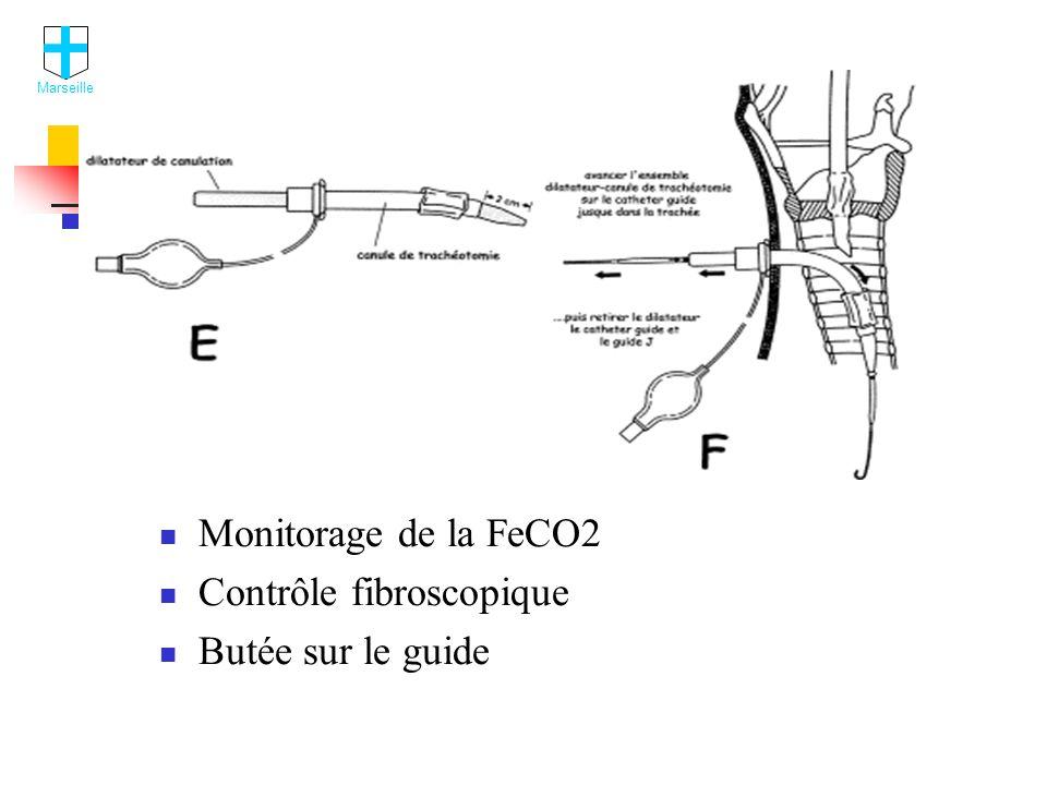 Monitorage de la FeCO2 Contrôle fibroscopique Butée sur le guide Marseille