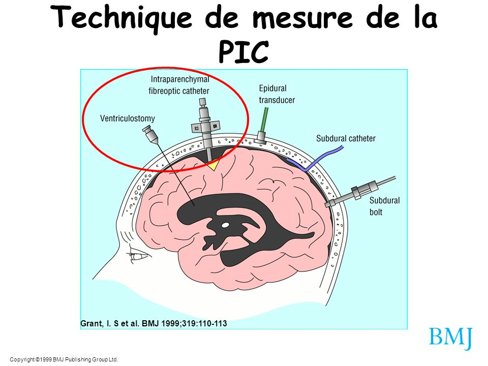 Copyright ©1999 BMJ Publishing Group Ltd. Grant, I. S et al. BMJ 1999;319:110-113 Technique de mesure de la PIC