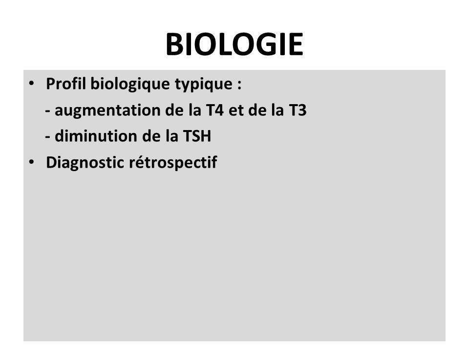 BIOLOGIE Profil biologique typique : - augmentation de la T4 et de la T3 - diminution de la TSH Diagnostic rétrospectif