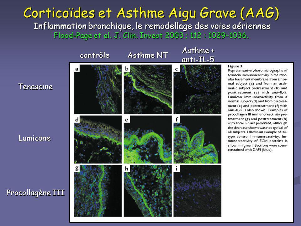 Corticoïdes et Asthme Aigu Grave (AAG) Inflammation bronchique, le remodellage des voies aériennes Flood-Page et al. J. Clin. Invest 2003 ; 112 : 1029