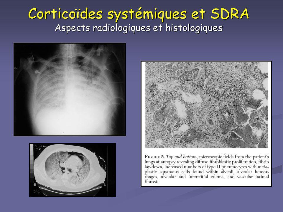 Corticoïdes systémiques et SDRA Aspects radiologiques et histologiques