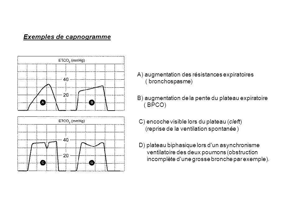 Exemples de capnogramme A) augmentation des résistances expiratoires ( bronchospasme) B) augmentation de la pente du plateau expiratoire ( BPCO) C) en
