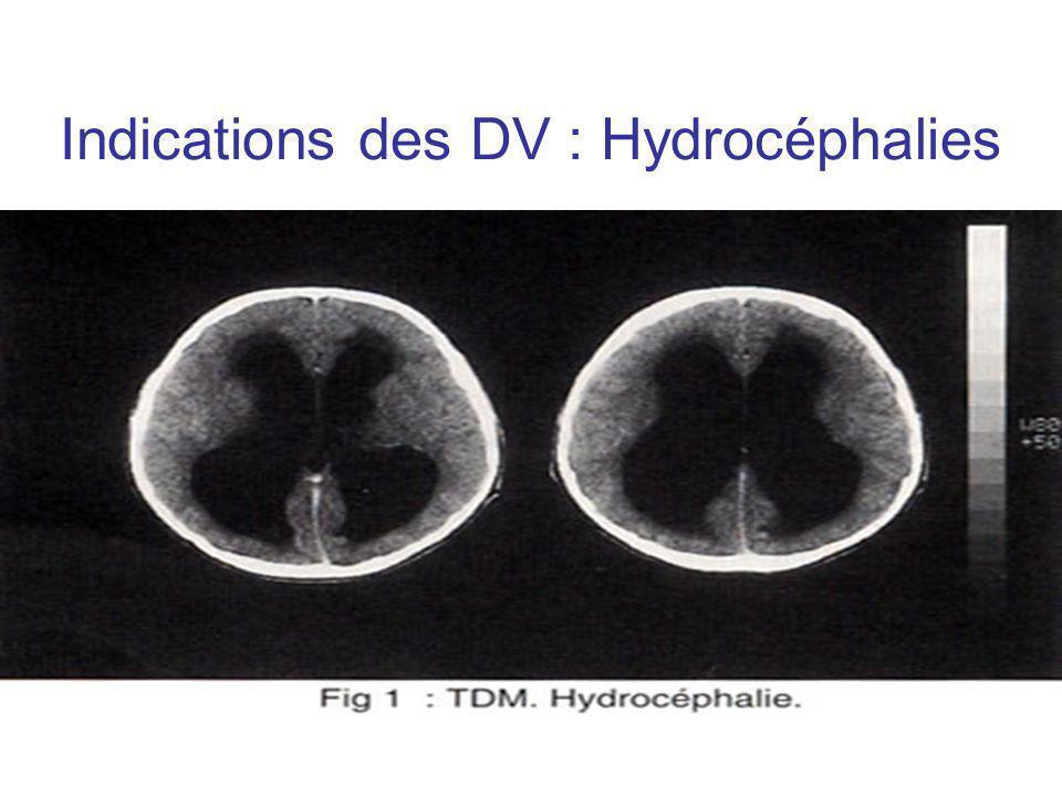 Indications des DV : Hydrocéphalies Objectifs : –Drainage de la production quotidienne de LCR –Normalisation et monitorage fiable de la PIC pour les DVE Indications : –HSA –Trauma crânien –Tumeurs intra crâniennes –Hydrocéphalies idiopathiques –Ventriculites ou ventriculites sur valve interne