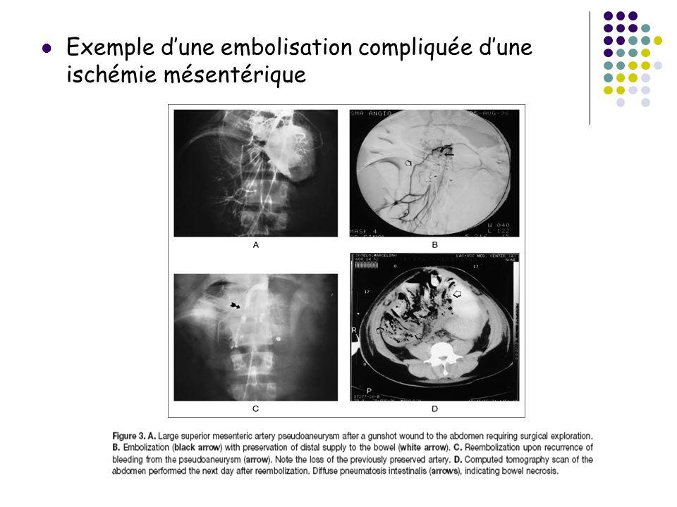 Exemple dune embolisation compliquée dune ischémie mésentérique
