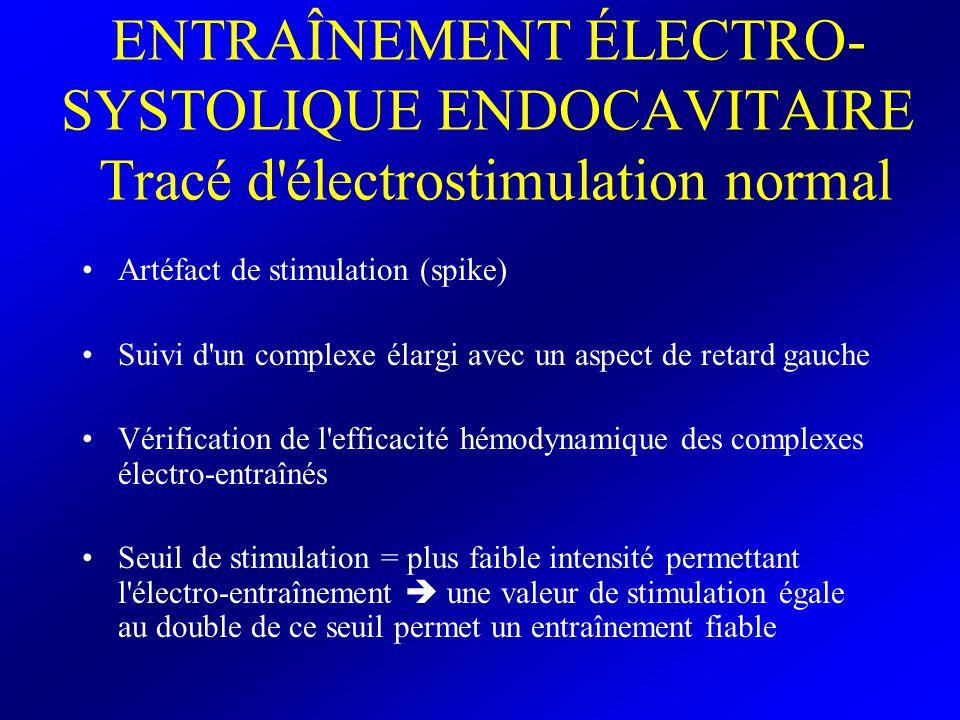 ENTRAÎNEMENT ÉLECTRO- SYSTOLIQUE ENDOCAVITAIRE Tracé d'électrostimulation normal Artéfact de stimulation (spike) Suivi d'un complexe élargi avec un as