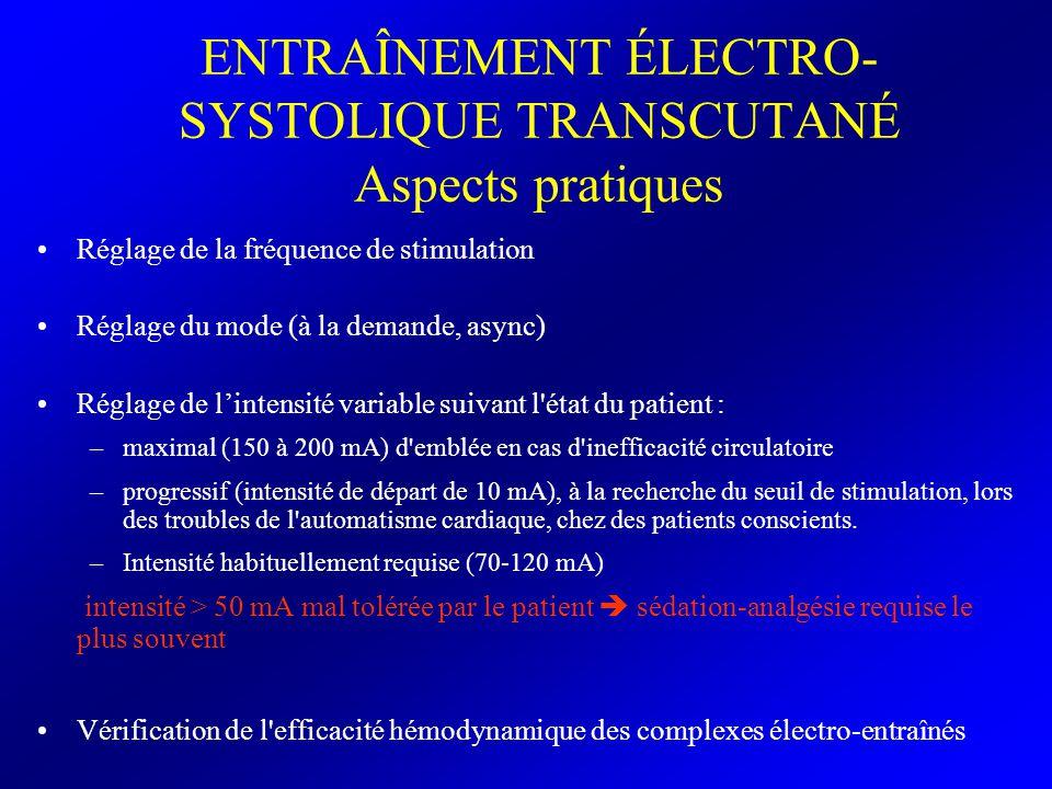 ENTRAÎNEMENT ÉLECTRO- SYSTOLIQUE TRANSCUTANÉ Aspects pratiques Réglage de la fréquence de stimulation Réglage du mode (à la demande, async) Réglage de