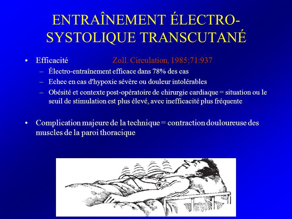 ENTRAÎNEMENT ÉLECTRO- SYSTOLIQUE TRANSCUTANÉ Zoll. Circulation, 1985;71:937Efficacité Zoll. Circulation, 1985;71:937 –Électro-entraînement efficace da