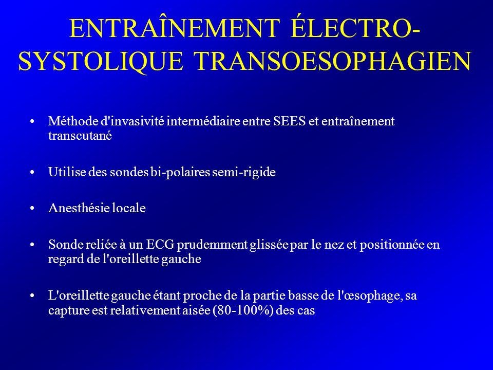 ENTRAÎNEMENT ÉLECTRO- SYSTOLIQUE TRANSOESOPHAGIEN Méthode d'invasivité intermédiaire entre SEES et entraînement transcutané Utilise des sondes bi-pola