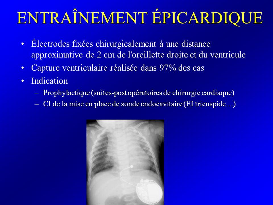 ENTRAÎNEMENT ÉPICARDIQUE Électrodes fixées chirurgicalement à une distance approximative de 2 cm de l'oreillette droite et du ventricule Capture ventr