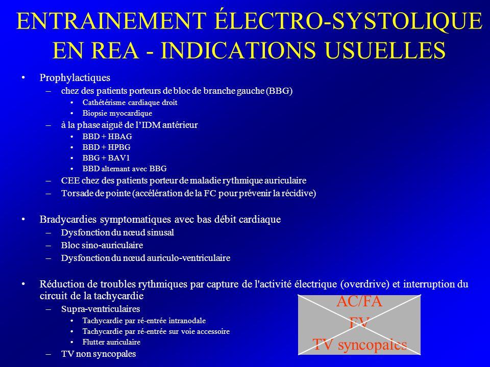 ENTRAINEMENT ÉLECTRO-SYSTOLIQUE EN REA - INDICATIONS USUELLES Prophylactiques –chez des patients porteurs de bloc de branche gauche (BBG) Cathétérisme