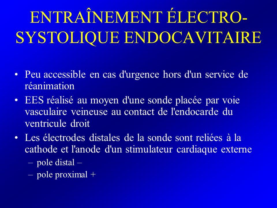 ENTRAÎNEMENT ÉLECTRO- SYSTOLIQUE ENDOCAVITAIRE Peu accessible en cas d'urgence hors d'un service de réanimation EES réalisé au moyen d'une sonde placé