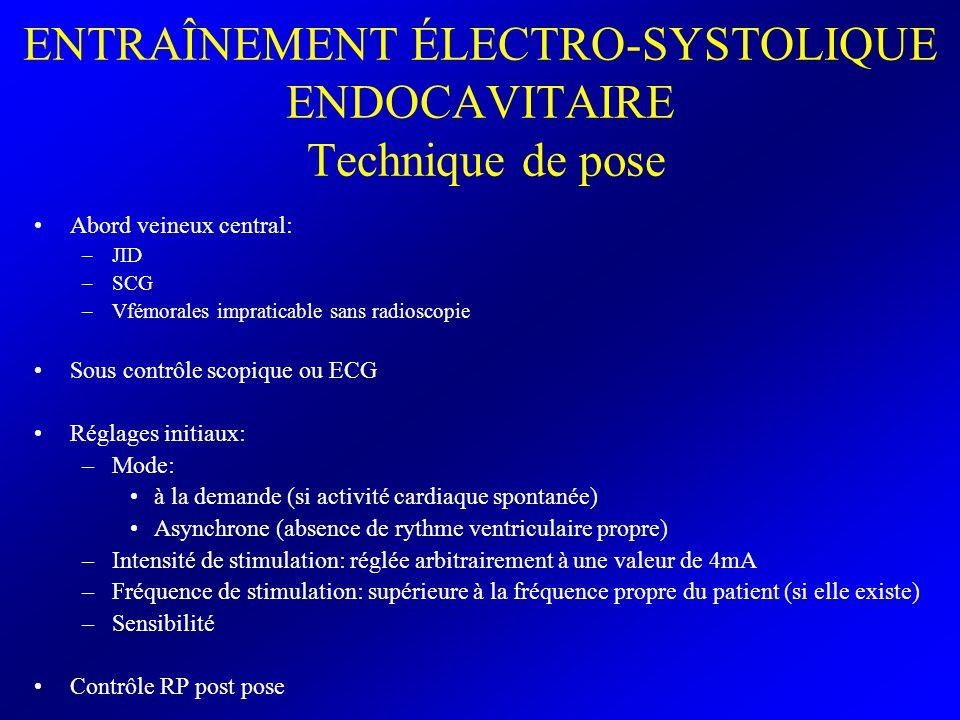 ENTRAÎNEMENT ÉLECTRO-SYSTOLIQUE ENDOCAVITAIRE Technique de pose Abord veineux central: –JID –SCG –Vfémorales impraticable sans radioscopie Sous contrô