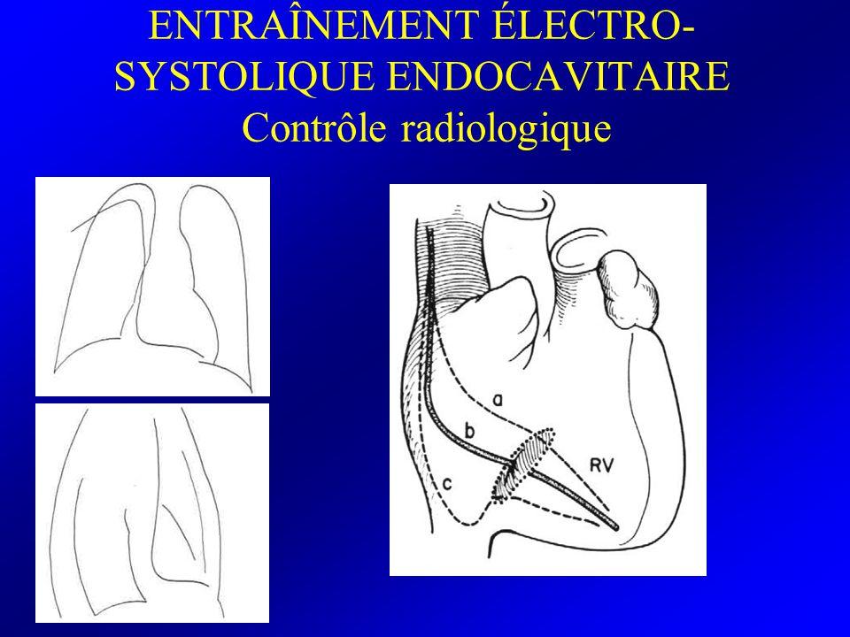 ENTRAÎNEMENT ÉLECTRO- SYSTOLIQUE ENDOCAVITAIRE Tracé d électrostimulation normal Artéfact de stimulation (spike) Suivi d un complexe élargi avec un aspect de retard gauche Vérification de l efficacité hémodynamique des complexes électro-entraînés Seuil de stimulation = plus faible intensité permettant l électro-entraînement une valeur de stimulation égale au double de ce seuil permet un entraînement fiable