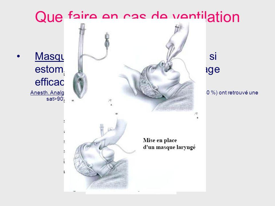 Que faire en cas de ventilation difficile? Masque Laryngé: Théoriquement CI si estomac plein Technique de sauvetage efficace (sauf obstruction glottiq