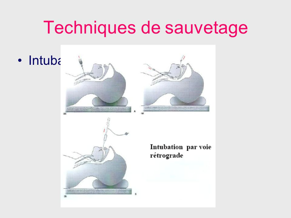 Techniques de sauvetage Intubation rétrograde