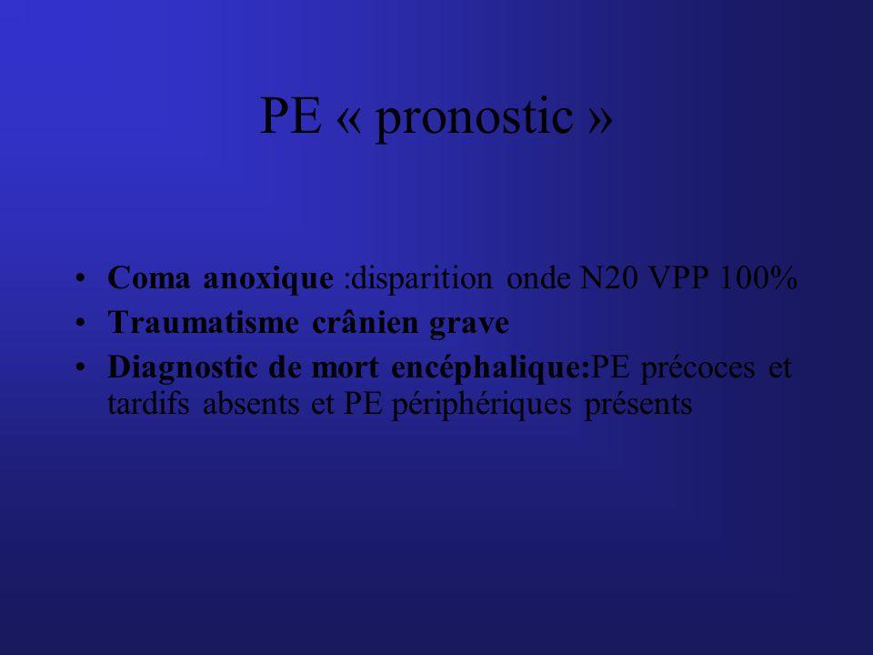 Coma anoxique :disparition onde N20 VPP 100% Traumatisme crânien grave Diagnostic de mort encéphalique:PE précoces et tardifs absents et PE périphériq
