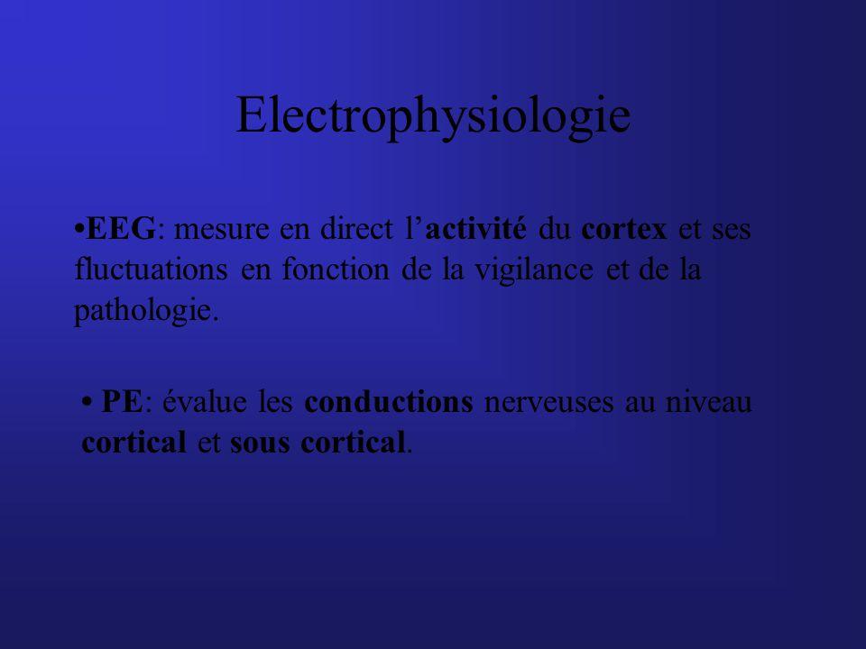 Electrophysiologie EEG: mesure en direct lactivité du cortex et ses fluctuations en fonction de la vigilance et de la pathologie. PE: évalue les condu