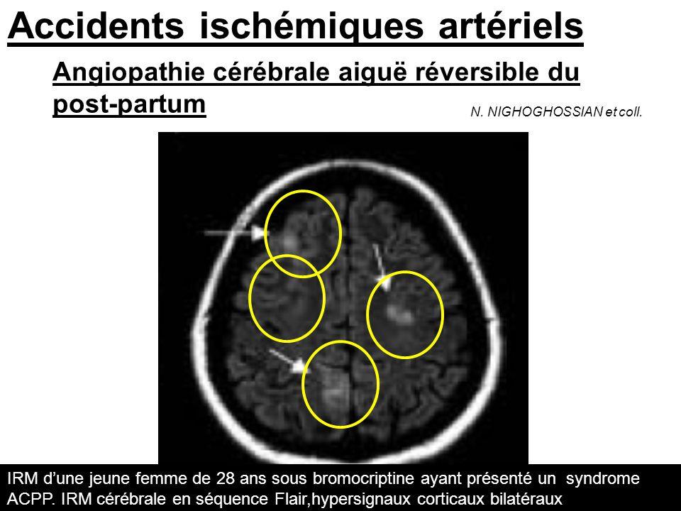 Accidents ischémiques artériels Angiopathie cérébrale aiguë réversible du post-partum N. NIGHOGHOSSIAN et coll. IRM dune jeune femme de 28 ans sous br