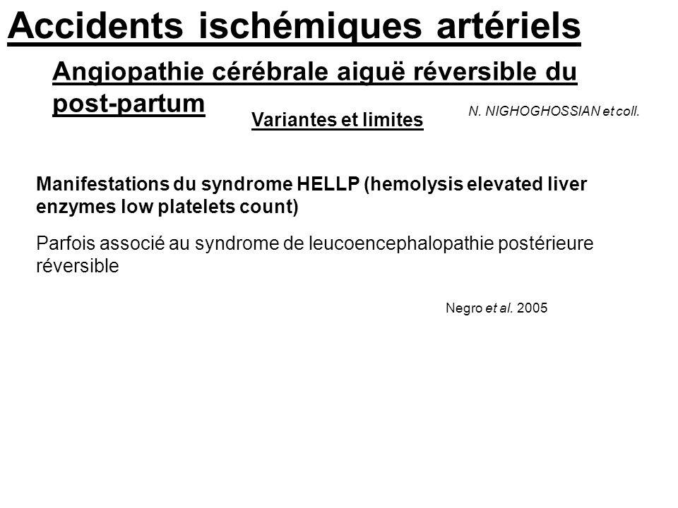 Accidents ischémiques artériels Angiopathie cérébrale aiguë réversible du post-partum N. NIGHOGHOSSIAN et coll. Variantes et limites Manifestations du