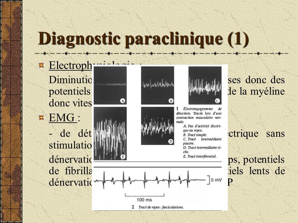 Diagnostic paraclinique (1) Electrophysiologie : Diminution du nombre de fibres nerveuses donc des potentiels daction nerveux,sans atteinte de la myél