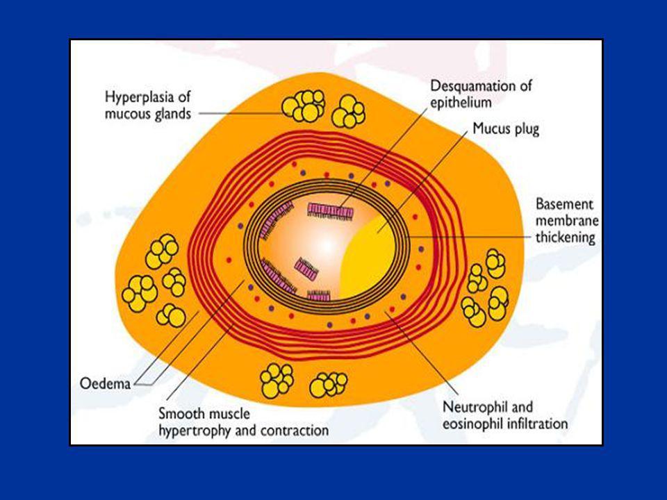 Corticoïdes Précoces: effet différé ( >6 ème H) Précoces: effet différé ( >6 ème H) Systématiques Systématiques IV ou PO: même efficacité IV ou PO: même efficacité Anti-inflammatoire, inducteur récepteurs β2, Anti-inflammatoire, inducteur récepteurs β2, remodelage VAS remodelage VAS Méthylprednisolone SOLUMEDROL® : Méthylprednisolone SOLUMEDROL® : 1 à 2 mg/kg/j (pas de bénéfice posologies plus hautes)