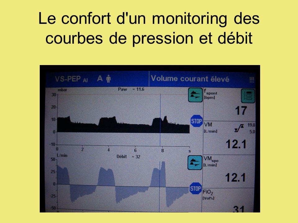 Le confort d'un monitoring des courbes de pression et débit