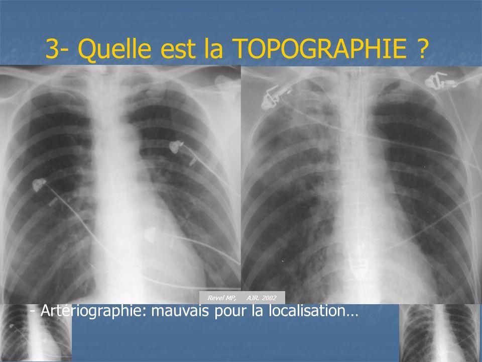 3- Quelle est la TOPOGRAPHIE ? - Clinique: difficile (latéralisation ds 2/3 des cas ?) - Radio thoracique: localisation dans 1 cas/2 - Fibroscopie bro