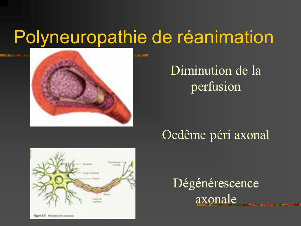 Polyneuropathie de réanimation Diminution de la perfusion Oedême péri axonal Dégénérescence axonale