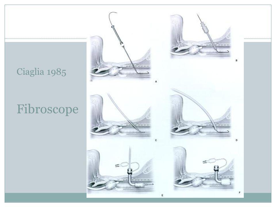 m Ciaglia 1985 Fibroscope