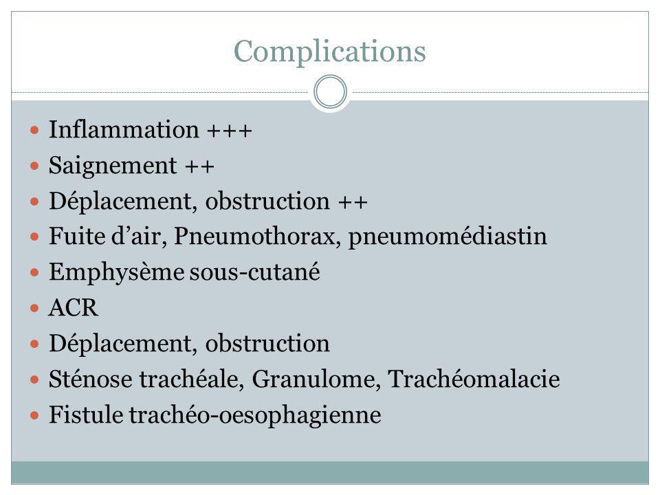 Inflammation +++ Saignement ++ Déplacement, obstruction ++ Fuite dair, Pneumothorax, pneumomédiastin Emphysème sous-cutané ACR Déplacement, obstructio