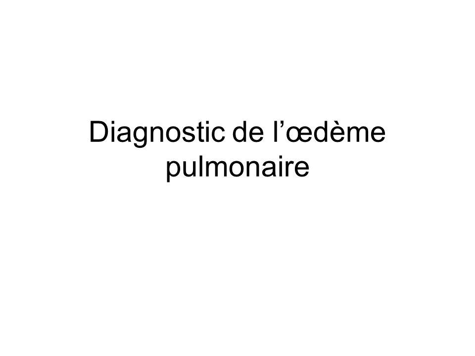 Diagnostic de lœdème pulmonaire
