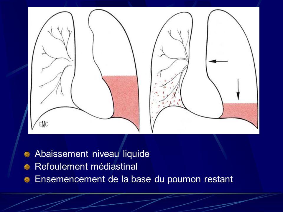 Abaissement niveau liquide Refoulement médiastinal Ensemencement de la base du poumon restant